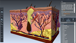 Visualizations and descriptions of a broad array of disease conditions are available.