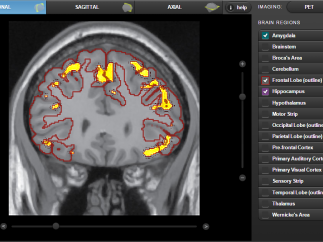 Image the brain using simulated PET scans or MRIs.